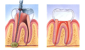 root-canal-prescott-az