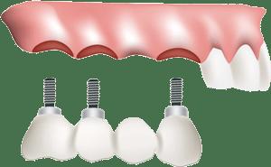 Dental Implant Benefits in Prescott, AZ