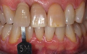 Before & After Images: Dentist Prescott AZ