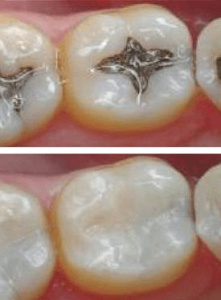 amalgam fillings vs prescott dental composite white fillings