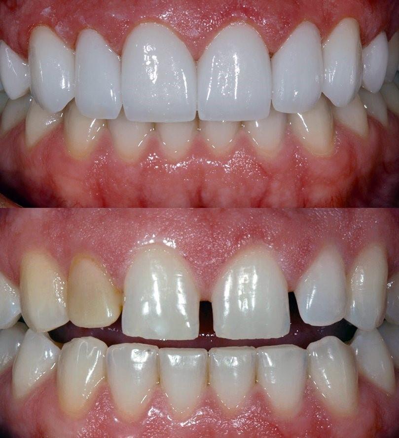 third molar prescott az zirconia porcelain