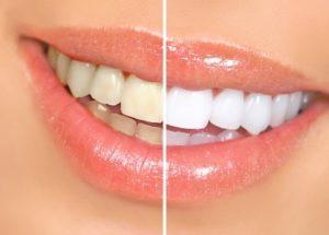 Advanced In-Office Whitening: Dentist Prescott AZ