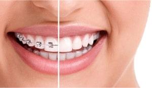 Dental Braces: Dentist Prescott AZ