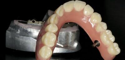 Dental Implant Bridges: Dentist Prescott AZ