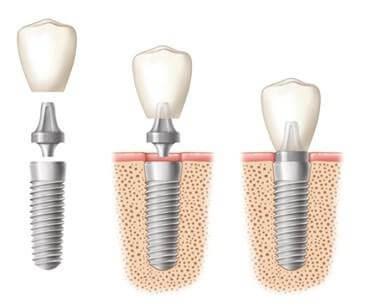 Dental Implant Crowns: Dentist Prescott AZ