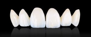 prescott az empress porcelain lateral and central incisor