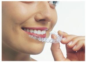 Invisalign Treatment: Dentist Prescott AZ