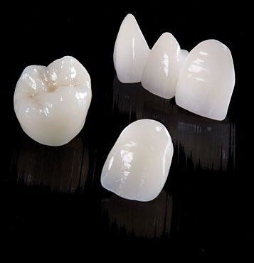 prescott az ips max lithium porcelain a molar, lateral and central incisor