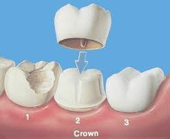 Same-Day Crowns & Bridges: Dentist Prescott AZ